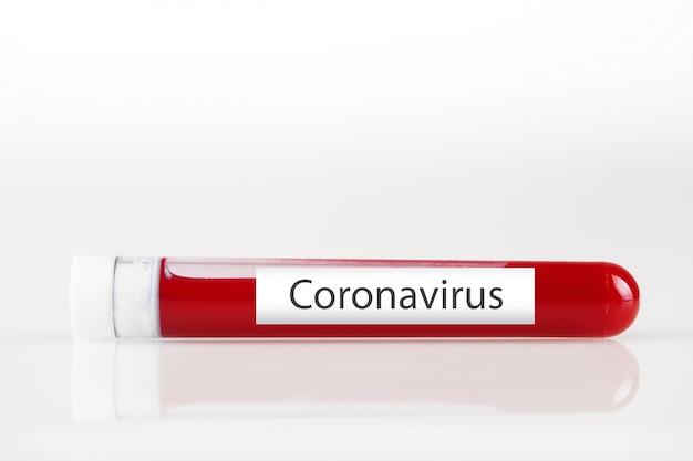 Reagenzglas mit blut und weißem aufkleber auf weiß. hintergrund mit kopierraum. coronavirus. horizontal.