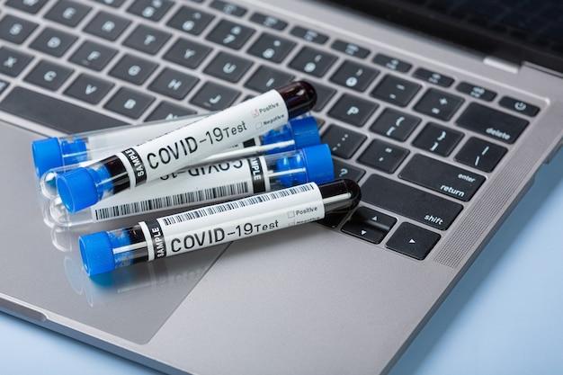 Reagenzglas mit blutprobe für covid-19-test