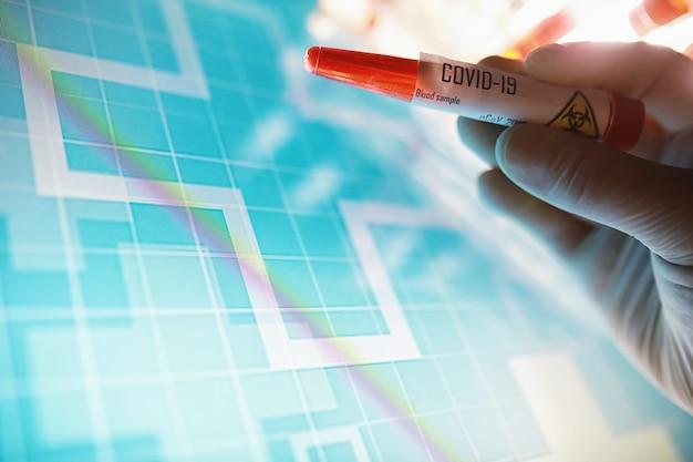 Reagenzglas mit patientenblut zum testen. analyse auf das virus. laborstudien zur coronavirus-pandemie. entwicklung von impfstoffen.