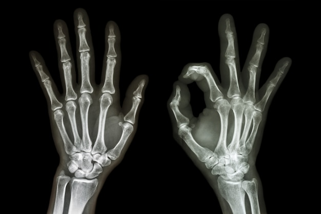 Röntgen beide hände mit ok-zeichen