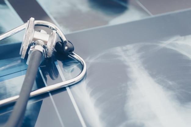 Röntgen der lunge mit stethoskop