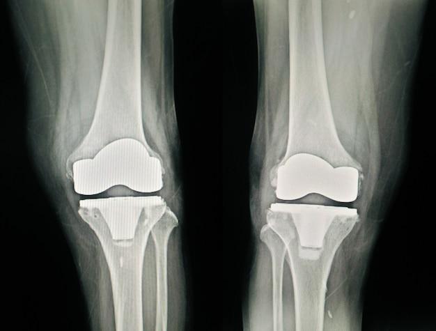 Röntgen-post-operation gesamtansicht der kniearthroplastik (tka)