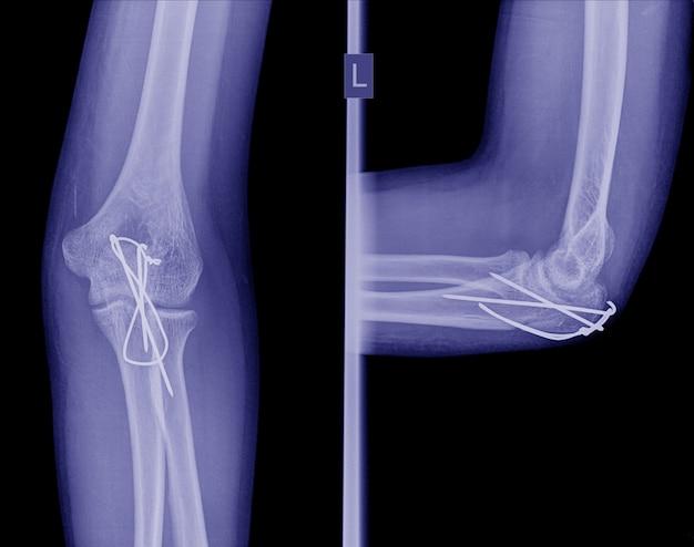 Röntgen-post-operation interne fixierung ellenbogenfraktur