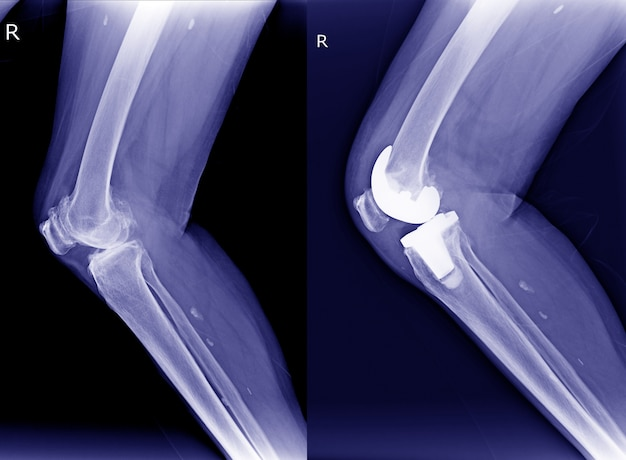Röntgen rechts arthrose des knies (oa) und postoperative kniearthroplastik (tka) vi