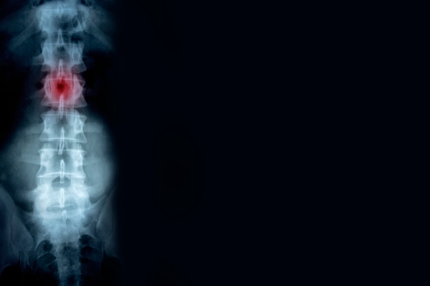 Röntgenaufnahme der wirbelsäule mit einem verletzungsort mit hintergrund im kopierraum