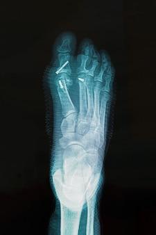 Röntgenaufnahme des fußes nach der operation zur korrektur des hallux-varus-zustands.
