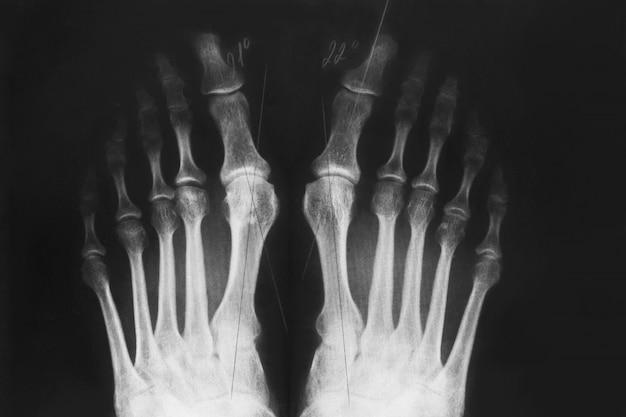 Röntgenaufnahme des fußes, valgusdeformität der zehe