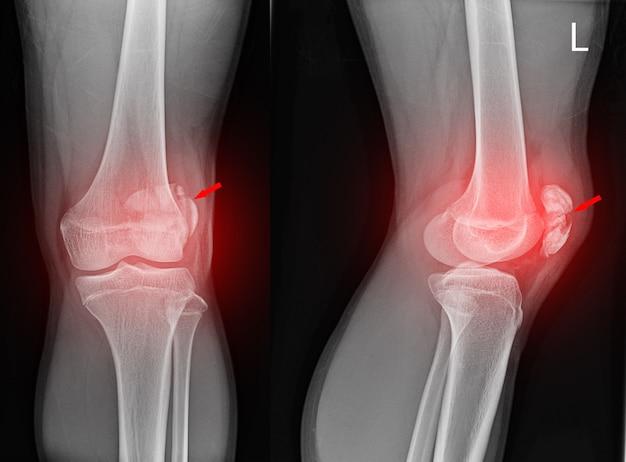 Röntgenaufnahme des kniegelenks