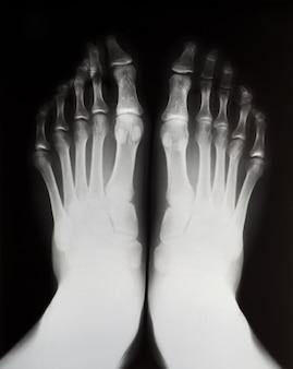 Röntgenaufnahme des linken und rechten fußes.