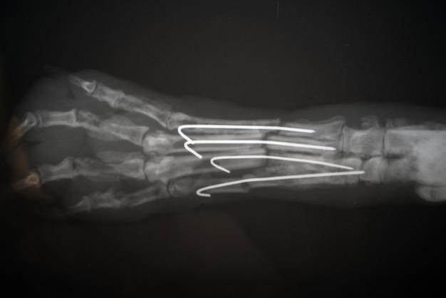 Röntgenaufnahme einer hundepfote. reales röntgenbild einer verletzten hundetatze.