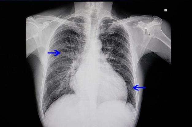Röntgenaufnahme eines patienten mit herzinsuffizienz