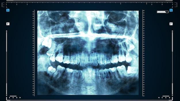Röntgenaufnahme menschlicher zähne oder forschung zur zahngesundheit. der arzt untersucht den kiefer des patienten, behandelt den zahn.