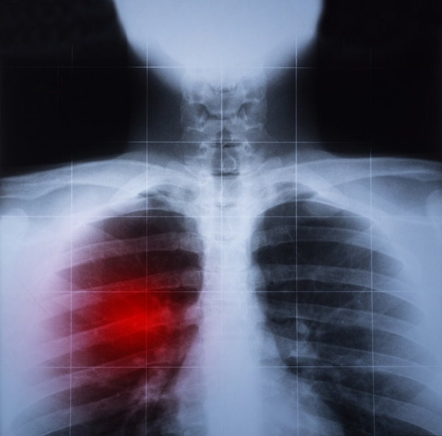 Röntgenbild der brust- und lungenerkrankung rot hervorgehoben