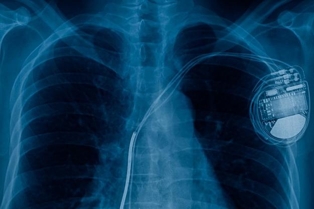 Röntgenbild der herzschrittmacherzelle
