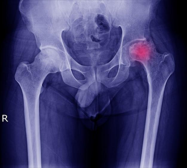 Röntgenbild der schmerzlichen hüfte in linkem hüftgelenk des anwesenden bruches des mannes an der roten bereichsmarkierung.