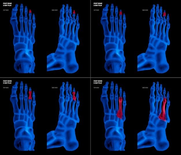 Röntgenblauer film von ringzehenfußknochen mit roten reflexen auf verschiedenen schmerz- und gelenkbereichen
