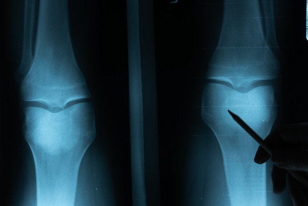 Röntgenfilm mit der hand des doktors zum zu überprüfen