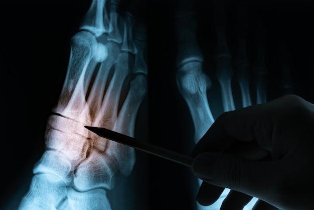 Röntgenfilm mit der hand des doktors