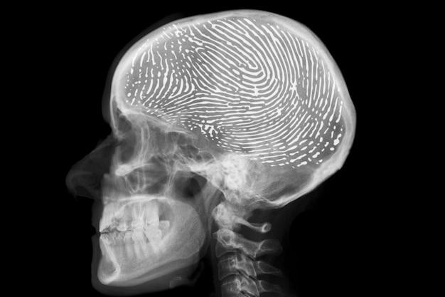 Röntgenkopf mit fingerabdruck im gehirn