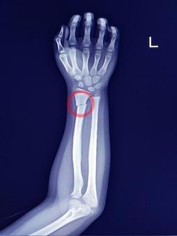 Röntgenunterarm, der distalen schaft des bruches des radius findet. leichte sklerose an der bruchlinie.