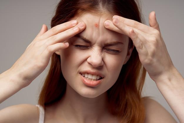Rothaarige frau gesichtshautprobleme dermatologie heller hintergrund