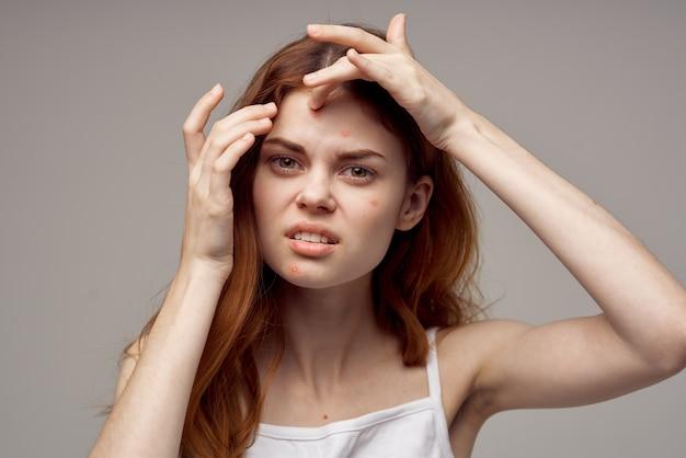 Rothaarige frau gesichtshautprobleme dermatologie nahaufnahme. foto in hoher qualität