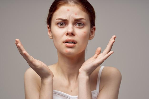 Rothaarige frau gesichtshautprobleme dermatologie nahaufnahme