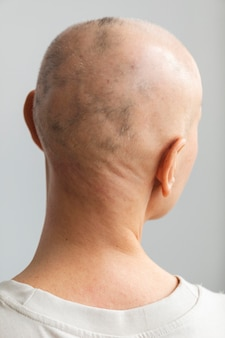 Rückansicht frau mit hautkrebs