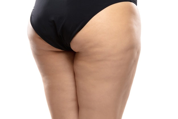 Rückansicht. übergewichtige frau mit fetten cellulite-beinen und gesäß, fettleibigkeit weiblicher körper in schwarzer unterwäsche isoliert auf weißem hintergrund. orangenhaut, fettabsaugung, gesundheits- und schönheitsbehandlung.