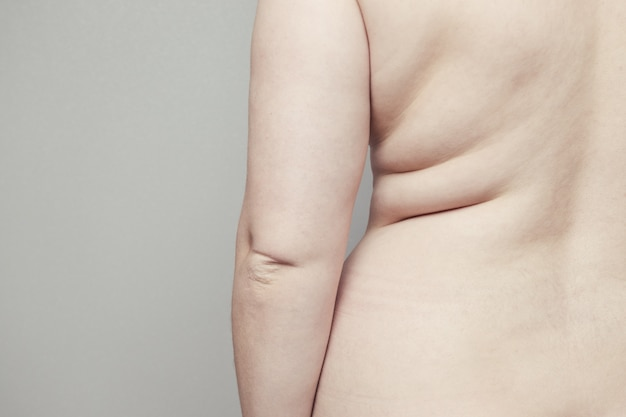 Rückseite des weiblichen nackten dicken körpers mit falten auf der haut. fettleibigkeit und endkrankheit