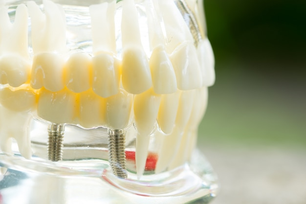 Satz zahnarztausrüstungswerkzeuge, gebiss, das implantat zeigt