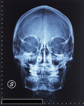 Schädel röntgen