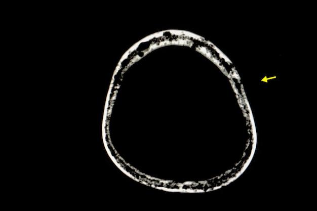Schädelfilm eines patienten mit multiplem myelom