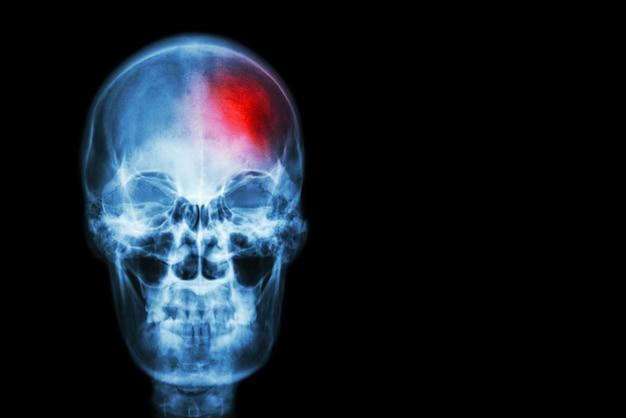 Schlaganfall (zerebrovaskulärer unfall). röntgenstrahlschädel des menschen mit rotem bereich am kopf.
