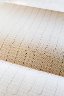 Schließen sie herauf ansicht eines elektrokardiogrammpapiers.