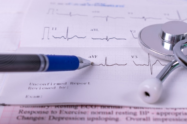 Schließen sie herauf doktor, der gesundheitswesenstatistik-diagrammbericht mit stethoskop auf herzdiagrammbericht analysiert