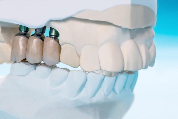 Schließen sie herauf implantatmodellzahnstütze-verlegenheitsbrückenimplantat und -krone.