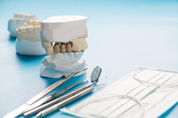 Schließen sie herauf implantatmodellzahnstützfix-brückenimplantat und -krone.