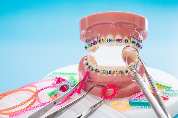 Schließen sie herauf orthodontisches modell und zahnarztwerkzeug