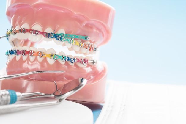 Schließen sie herauf orthodontisches modell