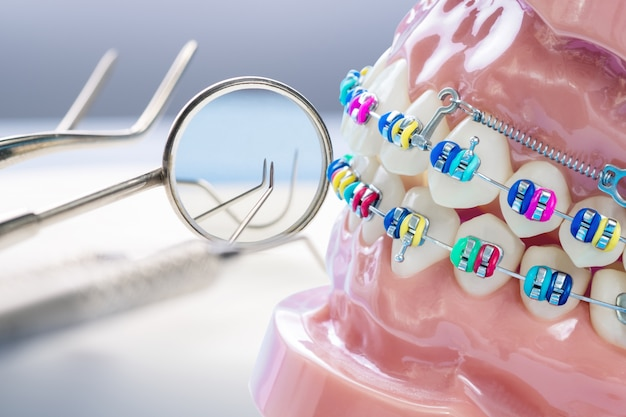 Schließen sie herauf zahnarztwerkzeuge und kieferorthopädisches modell