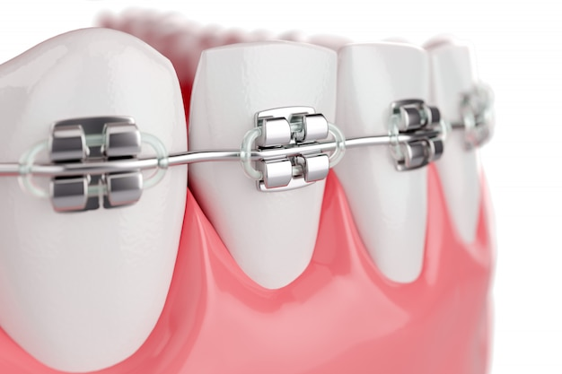 Schließen sie oben beauty health zähne mit zahnspange. selektiver fokus. 3d-rendering.
