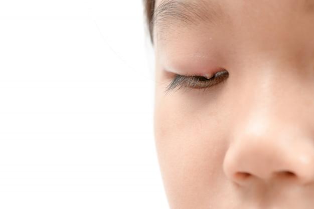 Schließen sie oben von der asiatischen augeninfektion des kleinen mädchens eins lokalisiert