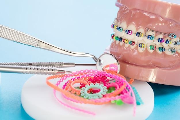 Schließen sie zahnarztwerkzeuge und kieferorthopädisches modell - demonstrationszahnmodell der verschiedenen arten der kieferorthopädischen klammer oder zahnspange
