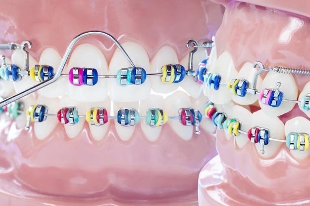 Schließen sie zahnarztwerkzeuge und kieferorthopädisches modell.
