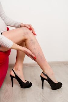 Schmerzhafte krampfadern und besenreiser an weiblichen beinen. frau, die müdes bein im büro massiert