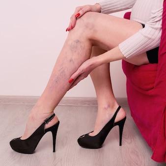 Schmerzhafte krampfadern und besenreiser an weiblichen beinen während der schwangerschaft.