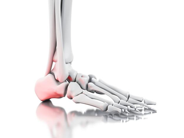 Schmerzhafter knöchel 3d