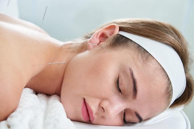 Schöne frau, die sich auf einem bett mit akupunkturbehandlung mit nadeln in und um ihr ohr entspannt