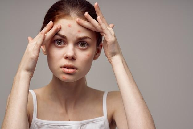 Schöne frau kosmetik hautpflege pubertät heller hintergrund